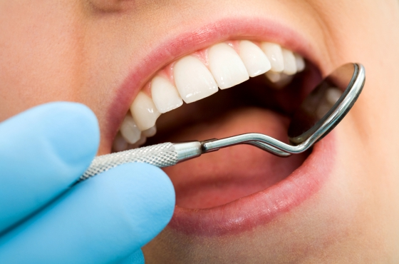 dental-insurance-gogoodscout